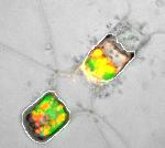 Diatomée